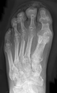 Röntgenaufnahme eines mit Gicht behafteten Fusses