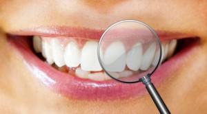 weiße Zähne nach Bleaching mit einer Lupe